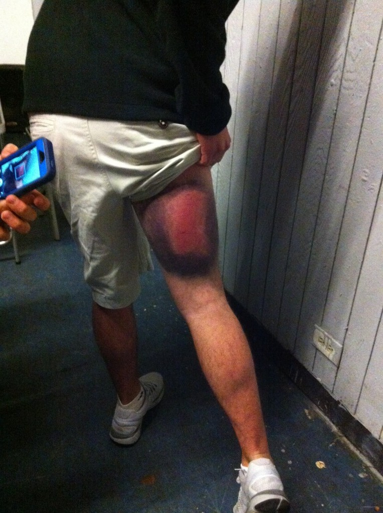 When paddling goes wrong.